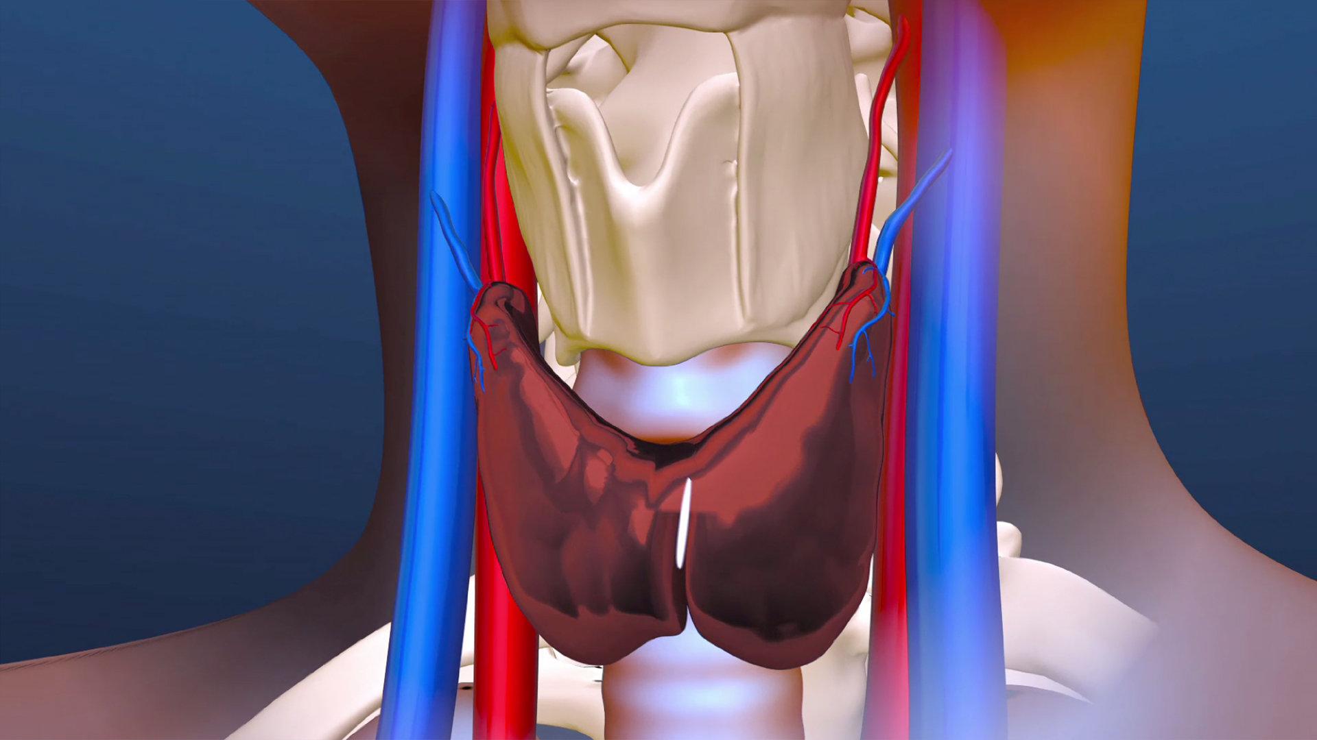 jamie-schmitt-surgery2